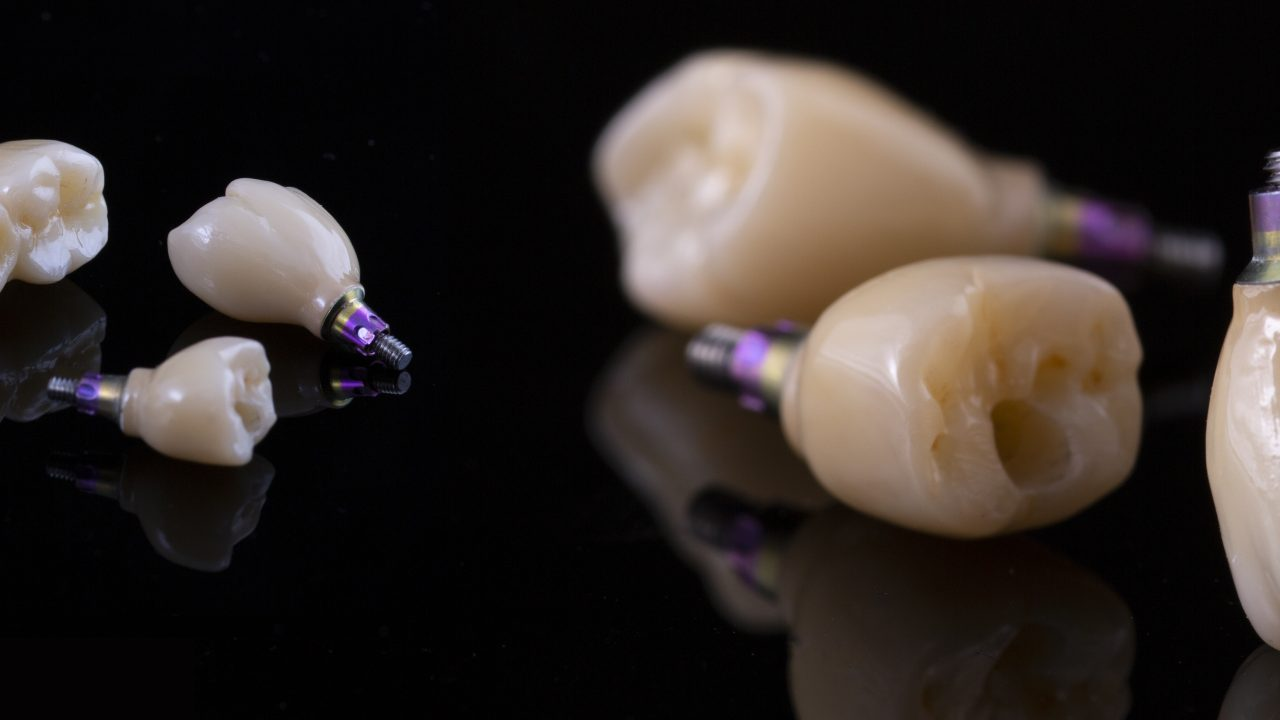 Tooth Human Implant.