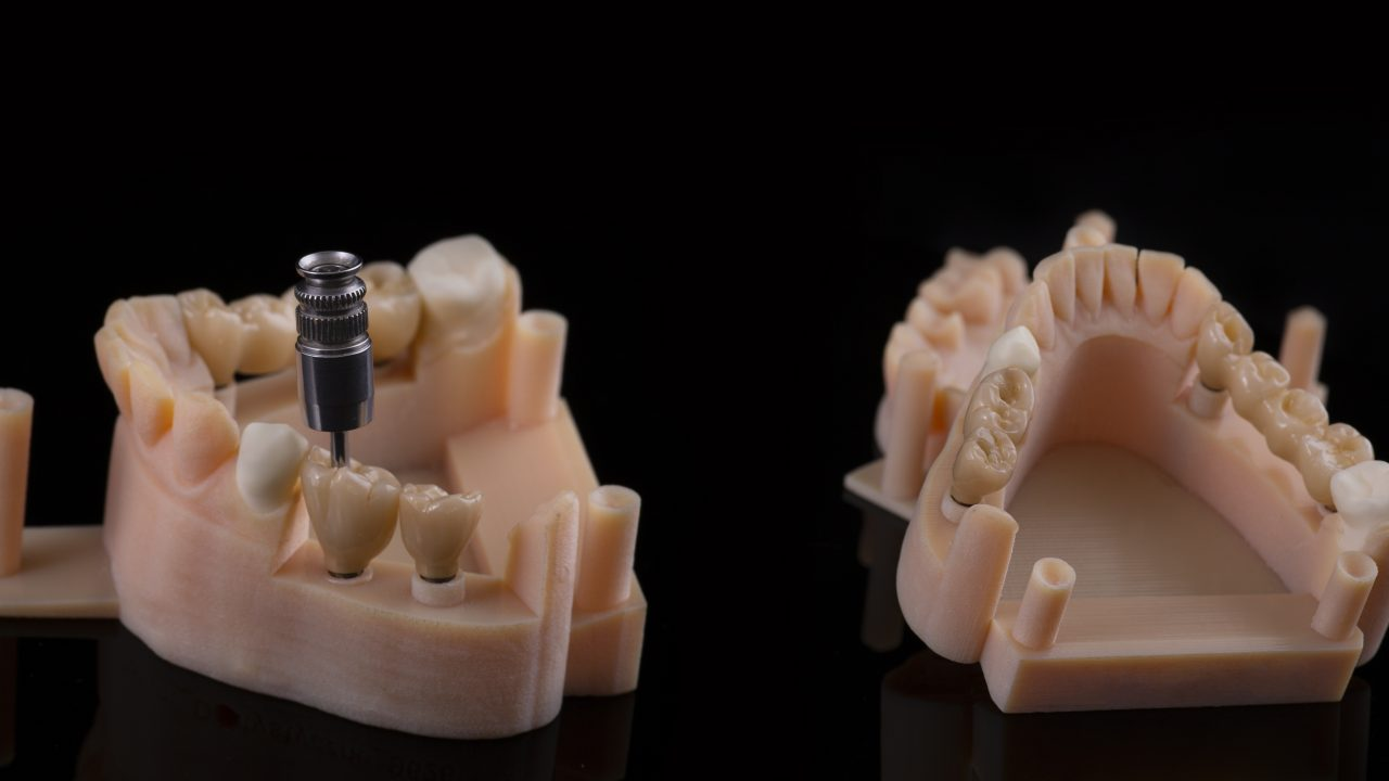 Ceramic Human Teeth Or Dent